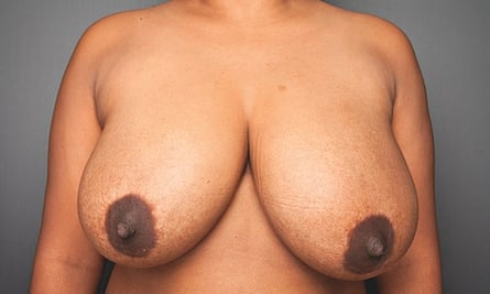 breasts: 40-year-old
