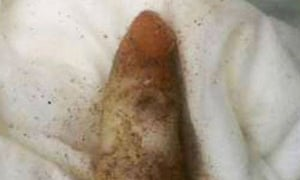 Darwin 'finger'