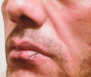 Manus Island lips