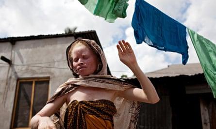 albinismFatu