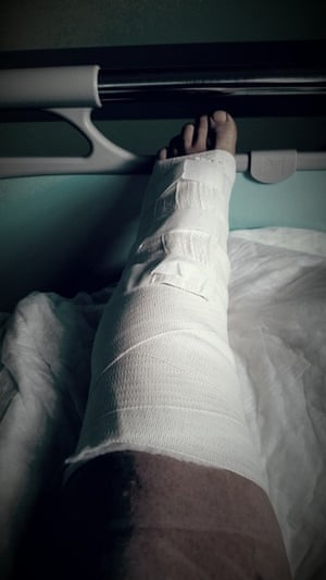 a person with their leg in a cast in a hospital bed