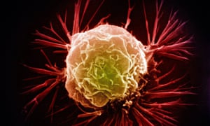 A breast cancer cell as scanned by an electron micrograph.