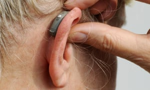 Modern small hearing aid behind the ear of a woman.