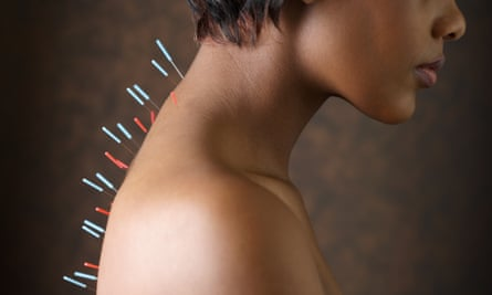 A woman with acupuncture needles in her back