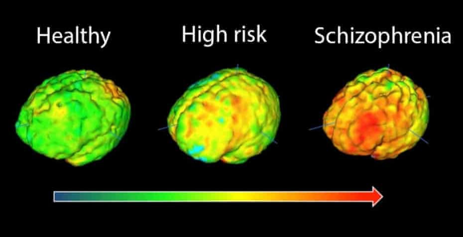 PET imaging schizophrenia