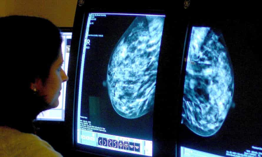 Researchers are raising questions over the value of mammograms in early detection of cancer.