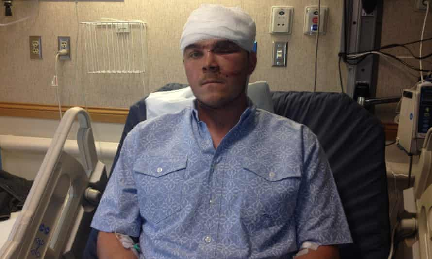 Chase Dellwo, 26, recovering in hospital after the grizzly bear attack.
