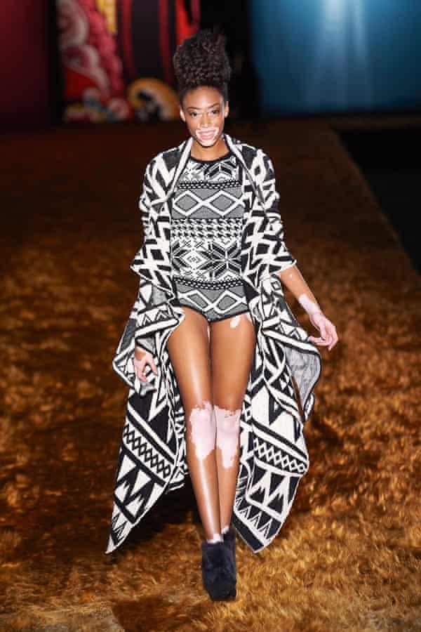 Chantelle Winnie I M Proud Of My Skin Fashion The Guardian