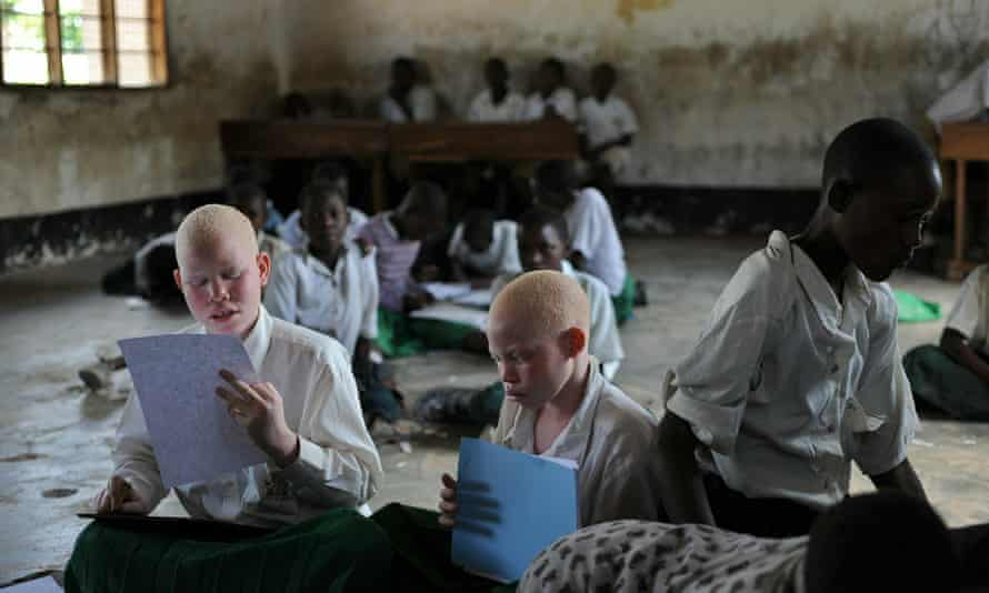 Albino children studying at the Mitindo primary school for the blind in Tanzania. At least 74 people with albinism have been murdered in the country since 2000.