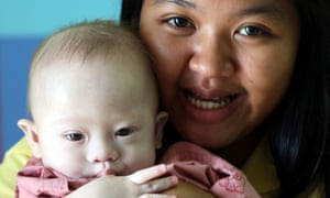 The case of Baby Gammy put foreign surrogacy arrangements in the spotlight in Australia.