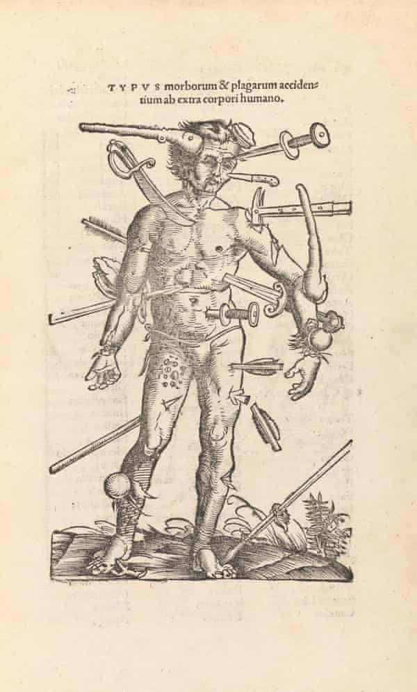 A 16th-century woodcut illustrating assorted wounds.
