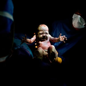 A baby born by caesarean section