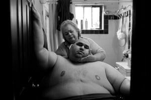 A Life Apart: The Toll of Obesity. At almost 600 pounds, Hector Garcia Jr finds simple daily tasks like bathing a challenge