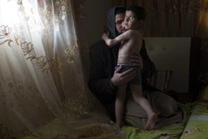 Injured Palestinian boy Yamen Achemd Abu Jaber, 4, with his uncle Adnan Abu Jaber