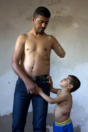 Nabil Siyam, 34, who lost his arm and sustained other injuries stands with his son Badruddin, 5 at their home in Rafa, Gaza