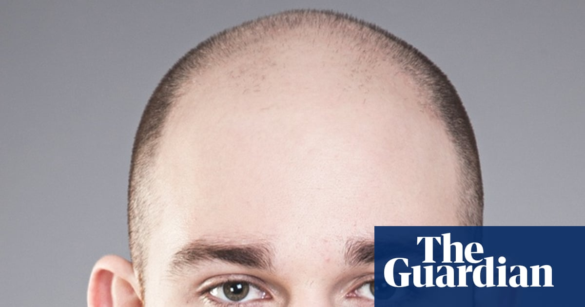 Going Going Gone I Started Losing My Hair At 16 Fashion The Guardian
