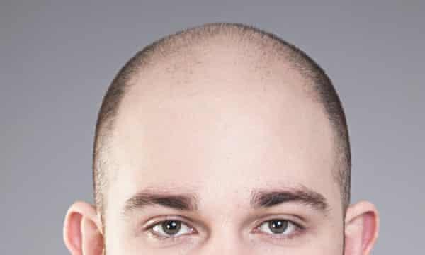 online dating bald spot)