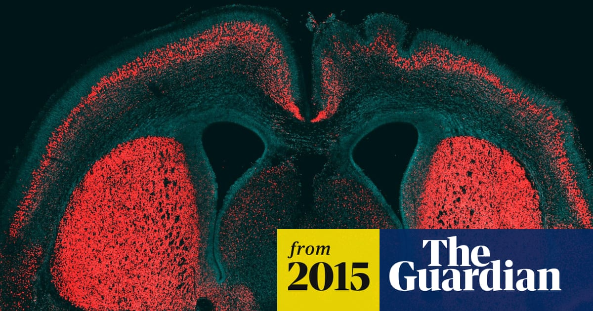 4fc4a49a436 Gene that makes human brain unique identified by scientists ...