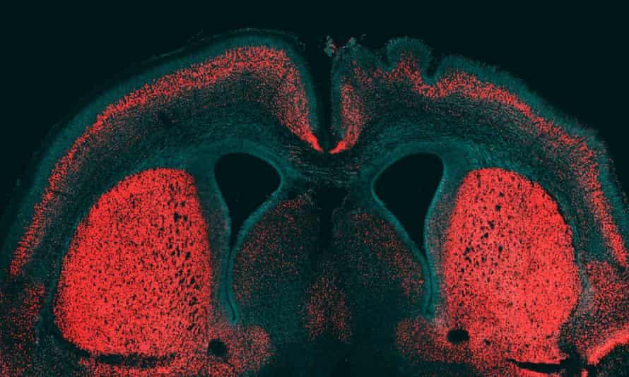 brain gene