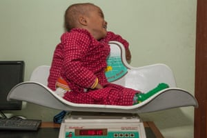 Boy with acute malnutrition is weighed