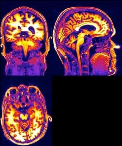 robert mccrum's brain scan