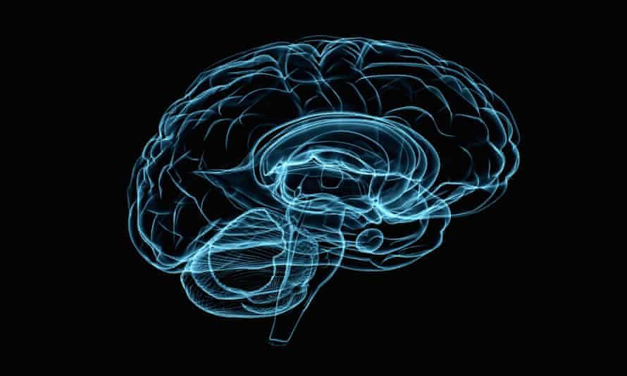 Illustration of brain xray