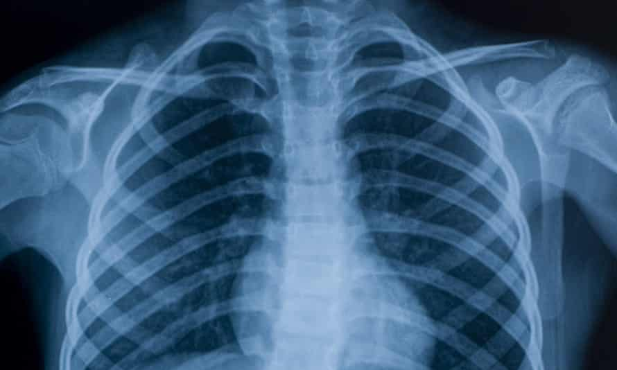 Operations and scans incliuding X-rays could be carried out by private companies