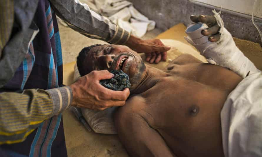 A man wipes the face of one of the workers injured in the cement factory collapse at Khulna hospital, Bangladesh.