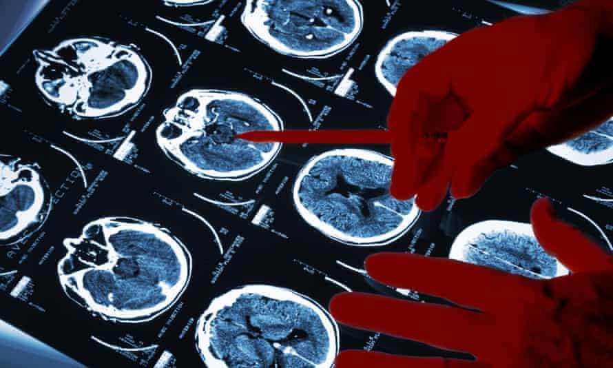 Doctor's hands examining brain scan