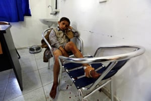 A boy receives treatment at a hospital in Sana'a after the attacks
