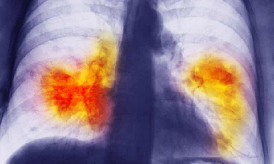 Chest x-ray showing lung cancer. In the 2000s, 18% of patients diagnosed with lung cancer in Austria survived – almost twice the rate in the UK.