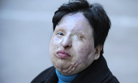 In 2011, Ameneh Bahrami, an Iranian woman who was blinded in an acid attack, pardoned her assailant