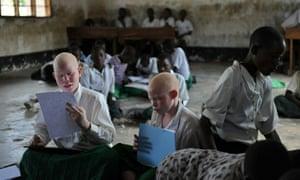 tanzania albinos