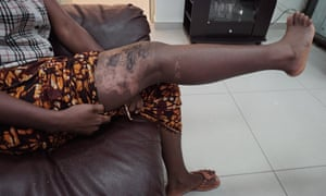 Adama, 24, a domestic worker from Sierra Leone, shows the scars on her leg. She says they were caused when her Kuwaiti employer deliberately spilled hot oil on her.