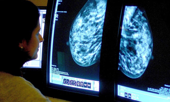 Women are not always to blame for delayed breast cancer