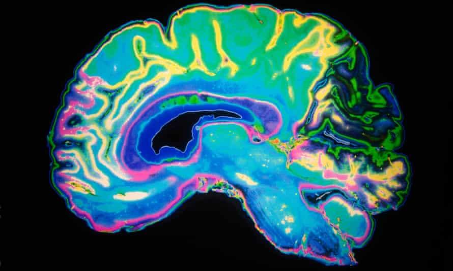 MRI scan of a human brain.