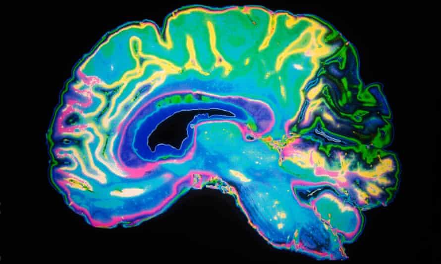 MRI scan human brain