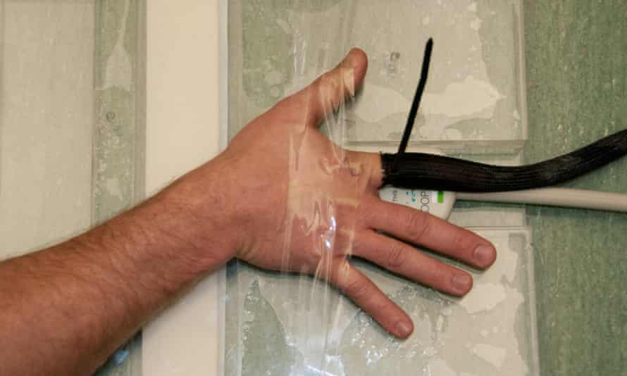 Finger cracking