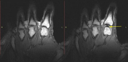 Images of the knuckles before (left) and after cracking (right).