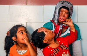 Somayeh Mehri has died after struggling with a respiratory problem caused by an acid attack. Her daughter, Rana, who was also a victim, survives.