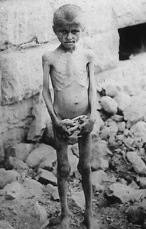 An Armenian boy suffering from starvation in 1915.