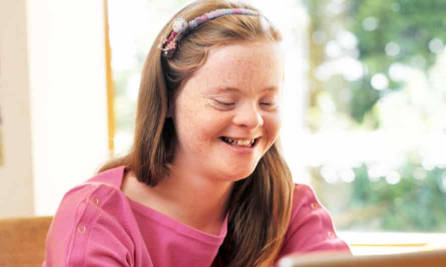 girl with down's syndrome