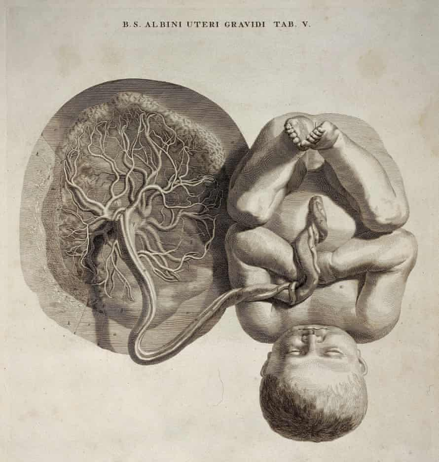 Fetus with umbilical cord and placenta. Wellcome Library, London.