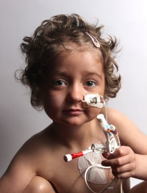 Young girl clutching a bunch of her medical tubes.