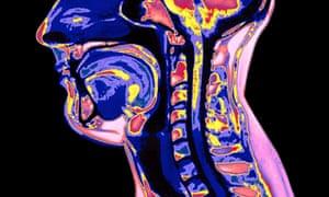 An MRI scan of the vocal tract, with the glottis, or vocal cords in dark blue to the right of the neck vertebrae.