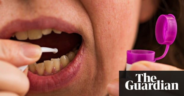 The rise of diy dentistry britons doing their own fillings to avoid home dental treatment picture posed by a model solutioingenieria