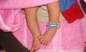 The ankle band is timed to change colours after set periods, to remind parents when their child's next vaccine shot should be given.