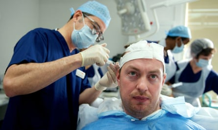 Surgeon Greg Williams performing a hair transplant on Michael Pulman.