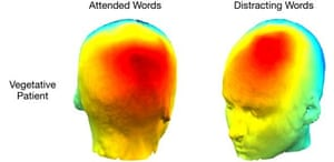 This scan depicts patterns of the vegetative patient's electrical activity over the head when they attended to the designated words, and when they were distracted by novel but irrelevant words.
