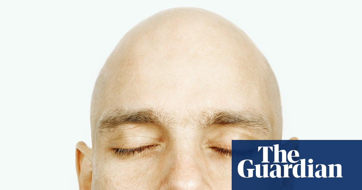 Bald Truth Plucking Hair Out Can Stimulate Growth Study Finds